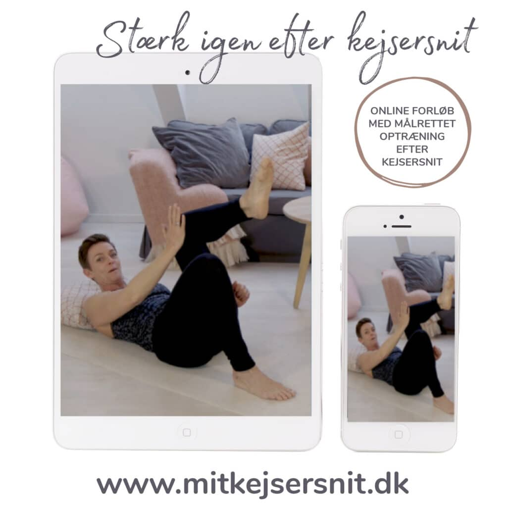 Heidi Holm   Ekspert i optræning efter kejsersnit & behandling af arvæv